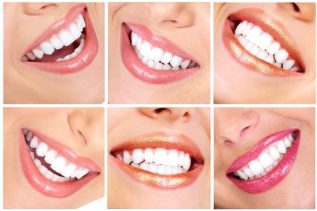 Teeth Whitening: Which option is right for YOU…?